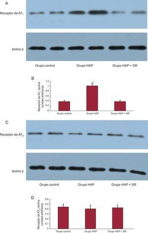 Análisis de Western blot de los receptores de angiotensina II tipo 1 y angiotensina II tipo 2 en los extractos de muestras de proteínas procedentes de la arteria pulmonar. A: ejemplos de las bandas de Western blot identificadas con los anticuerpos para el receptor de angiotensina II tipo 1. B: densidades medias de las bandas expresadas como proporciones de los tres grupos (grupo de hipertensión arterial pulmonar frente a grupo control y grupo de hipertensión arterial pulmonar + simpatectomía renal). C: ejemplos de las bandas de Western blot identificadas con los anticuerpos para el receptor de angiotensina II tipo 2. D: densidades medias de las bandas expresadas como proporciones de los tres grupos; no hubo diferencias significativas en las densidades de angiotensina II tipo 2 de los tres grupos. AT1: angiotensina II tipo 1; AT2: angiotensina II tipo 2; HAP: hipertensión arterial pulmonar; SR: simpatectomía renal. *p < 0,01.