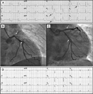 A: electrocardiograma tras 30min del inicio del dolor; se observan los «complejos de De Winter» en derivaciones V2-V4. B: oclusión de la descendente anterior proximal (flechas) y la estenosis significativa de la circunfleja (flechas punteadas). C: coronariografía tras la angioplastia; se observa la restauración del flujo en la arteria descendente anterior (flecha) y la lesión de la circunfleja, ya tratada (flecha punteada). D: electrocardiograma tras el procedimiento; imagen de infarto anterior evolucionado, con Q V1-V2 y ascenso persistente del ST V2-V5, I y aVL.