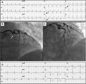 A: electrocardiograma a los 120min de iniciarse el dolor, con «complejos de De Winter» V2-V5 (flechas). B: oclusión de la descendente anterior proximal (flecha). C: restauración del flujo en la descendente anterior tras angioplastia e implante de stent (flecha). D: electrocardiograma tras el procedimiento; imagen de infarto anterior en evolución, con ondas Q en V1-V3, mínimo ascenso del ST y negativización de la onda T en V1-V5.