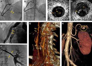 A: coronariografía (paciente 2) con disección coronaria espontánea en la arteria descendente posterior (flechas). B: la misma paciente 6 meses después, restitutio ad integrum angiográfica. C: ecografía intravascular en disección coronaria espontánea (paciente 1); se identifican luz verdadera y falsa luz separadas por un flap intimomedial y la puerta de entrada (flecha). D: ecografía intravascular de hematoma coronario (paciente 1); se aprecian hematoma parietal (H) y artefacto de guía (*). E: arteria iliaca externa (paciente 9); irregularidades angiográficas compatibles con displasia fibromuscular (flechas). F: arteria renal izquierda (paciente 7) con irregularidades parietales típicas de displasia fibromuscular (flechas). G: angiografía por tomografía computarizada de troncos supraórticos (paciente 5); ambas arterias carótidas internas presentan la imagen típica de string of beads (flechas). H: angiografía por tomografía computarizada (paciente 4) que muestra aneurisma de la arteria esplénica de 7mm de diámetro (círculo). FL: falsa luz; H: hematoma parietal; LV: luz verdadera.