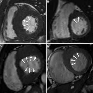 Miocardiopatía hipertrófica septal asimétrica. A: afección significativa del tabique. B: afectación leve del segmento anteroseptal (flechas). C: afección significativa de los segmentos anterior, anteroseptal, inferoseptal e inferior. D: afección moderada de los segmentos anterior y anteroseptal.