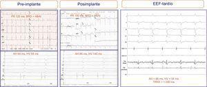 Electrogramas y electrocardiogramas de un paciente en el que no se registraron alteraciones electrocardiográficas tras el implante de la prótesis (se mantuvo el bloqueo bifascicular), si bien sí se presentaron cambios significativos en el electrograma intracavitario: alargamiento del intervalo HV (de 58 a 140ms). Una nueva valoración electrofisiológica tardía 7 días tras el implante objetivó la absoluta normalización de los intervalos intracavitarios. ADA, arteria descendente anterior; BRD: bloqueo de rama derecha del haz de His; EEF: estudio electrofisiológico; HBAI: hemibloqueo auricular izquierdo; TRNS: tiempo de recuperación del nodo sinusal; VD: ventrículo derecho.