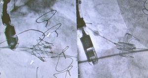 A: prótesis SAPIEN-XT expandida dentro de la prótesis mitral degenerada Epic (St. Jude Medical; St. Paul, Minnesota, Estados Unidos); en las flechas se observa el anillo radioopaco alineado. B: prótesis SAPIEN preexpandida; se observa el anillo y el soporte de la prótesis mitral Perimount (Edwards Lifesciences; Irvine, California, Estados Unidos).