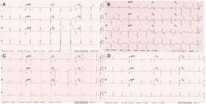 Electrocardiogramas de varios portadores de la mutación p.Arg219His en SCN5A. A: electrocardiograma del caso índice III.3 (a los 30 años). B: electrocardiograma del caso II.3 (62 años). C: electrocardiograma del caso III.8 (32 años). D: electrocardiograma de la portadora asintomática II.8 (58 años).