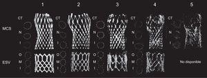 Calidad de imagen de la angiografía rotacional de grado 1 (la mejor calidad) a grado 5 (la peor). CT: coaptación central de las valvas; ESV: válvula Edwards SAPIEN®; I: entrada; M: segmento medio; MCS: sistema Medtronic CoreValve®; N: nadir; O: salida.