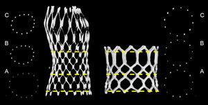 Vista transversal a los tres niveles de interés del dispositivo autoexpandible Medtronic CoreValve® y la estructura Edwards SAPIEN®. A: entrada. B: nadir/segmento medio. C: coaptación/salida.