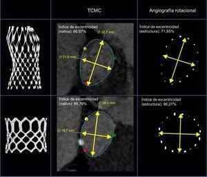 Ejemplo de anillo aórtico de 2 pacientes con similares excentricidades del anillo (tomografía computarizada multicorte) tratados con la válvula Medtronic CoreValve® y la válvula Edwards SAPIEN®. Izquierda: imagen tridimensionalizada de la estructura implantada. Derecha: geometría de la estructura a nivel del nadir (Medtronic CoreValve®) y el segmento medio (Edwards SAPIEN®) en la angiografía rotacional después del implante percutáneo de válvula aórtica. Centro: vista transversal e índice de excentricidad de las válvulas Medtronic CoreValve® (arriba) y Edwards SAPIEN® (abajo) después del implante percutáneo de válvula aórtica. TCMC: tomografía computarizada multicorte.