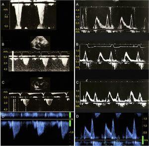 Gradiente de obstrucción del tracto de salida del ventrículo izquierdo (paneles de la izquierda) y flujo Doppler transmitral (paneles de la derecha) en un paciente con miocardiopatía hipertrófica obstructiva tratada con estimulación secuencial auriculoventricular seguido durante 18 años. A: basal; B: 6 meses de seguimiento; C: 12 meses de seguimiento; D: final del seguimiento. Se observa la reducción permanente del gradiente de obstrucción del tracto de salida del ventrículo izquierdo (izquierda) y la ausencia de progression de la disfunción diastólica basal (derecha, A) a lo largo del seguimiento.