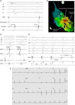 A: registros intracavitarios y derivaciones electrocardiográficas de un latido sinusal (izquierda) y de uno de taquicardia (derecha). B: imagen en oblicua anterior derecha de la reconstrucción electroanatómica y mapa de activación de los potenciales fasciculares con CARTO® 3. C: registros intracavitarios con el catéter de ablación en la posición de éxito en un latido en sinusal (izquierda) y uno en taquicardia (derecha). D: detalle del encarrilamiento de la taquicardia desde el punto de ablación exitosa. E: electrocardiograma de 12 derivaciones tras la ablación de la taquicardia. Abl d: ablación distal; Abl p: ablación proximal; ADA: aurícula derecha; aVD: ápex del ventrículo derecho; HV: His-ventrículo; PF: potencial fascicular.
