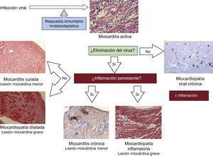 Patogenia de la miocardiopatía viral e inflamatoria.
