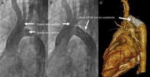 Aortografía de aorta ascendente antes y después del implante de un stent CP de 39mm en el sitio de coartación (A y B), con control posterior con tomografía computarizada con contraste (C).
