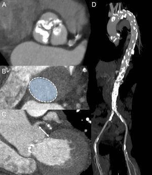 Papel de la tomografía computarizada multidetectores en la evaluación previa a la intervención. A: proyección transversal oblicua doble de una válvula aórtica tricúspide intensamente calcificada. B: planimetría del anillo aórtico. C: medición de la distancia entre la arteria coronaria principal izquierda y el anillo aórtico (flecha). D: la aortografía con tomografía computarizada muestra una aorta intensamente calcificada, sobre todo en el cayado aórtico y en la parte descendente. Se aprecian también calcificaciones en ambas arterias femorales.