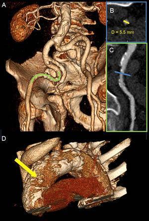 Evaluación de la vía de acceso para la sustitución percutánea de válvula aórtica mediante tomografía computarizada multidetectores. A: arterias iliofemorales bilaterales de intensa tortuosidad visualizadas con la imagen de volumen tridimensional. B: se evaluó la luz transversal de la parte más estrecha del vaso (línea azul en C); el diámetro mínimo fue 5,5 mm (flecha amarilla), lo cual impedía utilizar con seguridad el abordaje transfemoral para la sustitución percutánea de válvula aórtica. C: se estudió más detalladamente un segmento de la arteria iliaca externa derecha (línea verde en A) en un plano de reconstrucción multiplanar, que evidenció una carga aterosclerótica elevada con múltiples placas. D: aorta torácica intensamente calcificada-aorta de porcelana, especialmente en la parte anterolateral de la aorta ascendente, que corresponde a la zona de destino para la vía de abordaje transaórtico (flecha amarilla). Esta figura se muestra a todo color solo en la versión electrónica del artículo.