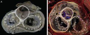 Renderización de volumen tridimensional en tomografía computarizada cardiaca. Obsérvese la relación de las estructuras anatómicas alrededor del esqueleto fibroso con vistas a la planificación de procedimientos de implante valvular percutáneo. Ao: aorta; D: trígono derecho; I: trígono izquierdo; Mi: válvula mitral; Tr: válvula tricúspide.