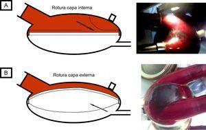Diagrama de rotura de membrana. A: rotura de capa interna (caso 1). B: rotura de capa externa (caso 2).