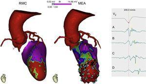 Imagen multimodal con una tomografía computarizada cardiaca para delimitar el trayecto de las arterias coronarias cuando se plantea un abordaje epicárdico de la ablación y con una resonancia magnética cardiaca que demuestra una cicatriz anteroseptal apical (rojo) con un zona de tejido viable en su interior (verde). El mapa electroanatómico endocárdico demuestra una zona de cicatriz densa apical, donde se detectan unos puntos (azules) que crean un canal de conducción lenta desde A hasta D, con retraso progresivo en el electrograma. Será este canal el sustrato y objetivo de la ablación. MEA: mapa electroanatómico; RMC: resonancia magnética cardiaca. Esta figura se muestra a todo color solo en la versión electrónica del artículo.