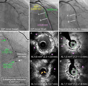 Reestenosis en la zona de solapamiento con tomografía de coherencia óptica en la angiografía de seguimiento a los 13meses de un paciente tratado con 3 ABA solapados, que mostró una proliferación de neoíntima en la zona del solapamiento, que causaba un área luminal mínima de 1,7mm2 (B'). A y B: imágenes de ecografía intravascular (IVUS) al final de la intervención inicial. A' y B':imágenes de tomografía de coherencia óptica al mismo nivel en el seguimiento realizado a los 13meses. A y A':área de expansión incompleta del armazón bioabsorbible en la intervención inicial (A), que se caracterizaba por una hiperplasia de neoíntima excesiva en el seguimiento (A'). B y B':área de solapamiento de los armazones bioabsorbibles, que tuvieron también una expansión incompleta en la intervención inicial (B). Como resultado de ello, en el seguimiento a los 13meses, la hiperplasia de neoíntima dio lugar a reestenosis en el armazón. Asterisco rosa: lesiones calcificadas. Las flechas amarillas indican los struts de los armazones solapados en la IVUS inicial (B). ABA:armazón bioabsorbible; AL:área de la luz; ICP:intervención coronaria percutánea. Esta figura se muestra a todo color solo en la versión electrónica del artículo.