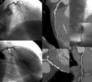 Varón de 82 años de edad con diabetes mellitus e hipertensión como factores de riesgo coronario y con indicación de coronariografía invasiva. En la coronariografía invasiva se observan lesiones leves en la parte media de la arteria coronaria descendente anterior izquierda (A y E), la parte media de la circunfleja (E) y la parte distal de la arteria coronaria derecha (C). La angiografía por tomografía computarizada coronaria mostró una lesión calcificada moderada en la parte media de la arteria descendente anterior izquierda, con lesiones proximales y distales leves (B), una lesión grave en la rama obtusa marginal (F) y lesiones calcificadas leves en todos los segmentos de la arteria coronaria derecha (G). Además, se observa una placa no calcificada leve en el tronco coronario izquierdo (asterisco).