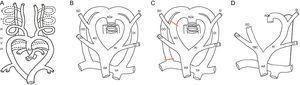 A: esquema embrionario con arcos branquiales. B:modelo hipotético de Edwards. C:regresión normal (arco aórtico izquierdo). D:esquema de arco aórtico izquierdo. AA:aorta ascendente; AD:arco derecho; ADe:aorta descendente; CD:carótida derecha; CI:carótida izquierda; DD:ductus derecho; DI:ductus izquierdo; SD:subclavia derecha; SI:subclavia izquierda; TBC: tronco braquiocefálico; TP:tronco pulmonar.