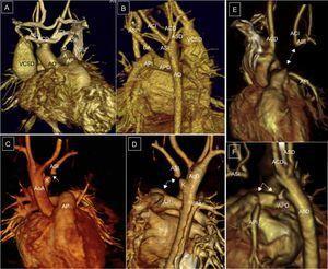 Arco aórtico derecho con desconexión de la arteria subclavia izquierda. Ay B:continuidad de la arteria subclavia izquierda distal (ASI) con el ductus arterioso. Cy D:visión anterior y posterior, pequeño divertículo de Kömmerell e interrupción del paso de contraste (flechas). Ey F:desconexión de tronco braquiocefálico izquierdo. E:visión anterior, ductus arterioso hipotético (flecha, puntos). F:visión lateral izquierda, arco aórtico derecho, ampolla ductal y ligamento ductal; pequeños divertículos que indican la presencia de ligamentos (flechas). ACD:carótida derecha; ACI:carótida izquierda; AP:arteria pulmonar; AO:aorta; ASD:subclavia derecha; ASI:subclavia izquierda; DA:ductus arterioso; E:esófago; K:divertículo de Kömmerell; T:tráquea; VAz:vena ácigos; VCSD: vena cava superior derecha; VCSI: vena cava superior izquierda.
