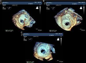 Ecografía transesofágica tridimensional, visión desde la porción superior de la aurícula izquierda de la entrada de la orejuela izquierda y la válvula mitral abierta. A:se observa la guía que atraviesa en septo interauricular y se dirige a la orejuela izquieda. B:el dispositivo Amplatzer Cardiac Plug posicionado en la orejuela izquieda todavía no liberado. C:relación anatómica respecto a la válvula mitral una vez liberado el dispositivo.