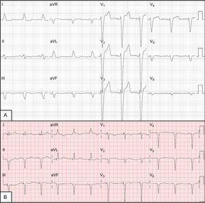 A: electrocardiograma basal que muestra bloqueo completo de rama izquierda. B:electrocardiograma con estimulación biventricular con signos de fusión entre la estimulación biventricular y la activación por la rama derecha, con estrechamiento del QRS.