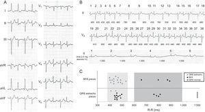 A: 12 eletrocardiografia de derivação. B: faixa completa de ECG à renda; As batidas 1-38 são consecutivas, apesar de serem duas derivações diferentes (II e V5); Os comprimentos de ciclo entre batidas estão em milissegundos; No painel inferior, a morfologia da QRS após a administração de 2,5 mg de atenolol intravenoso e passo em um ritmo sinusal é observado. C: representação gráfica da relação de morfologia QRS com o comprimento do ciclo e a morfologia do batimento cardíaco anterior. BFA: Bloqueio fascicular anterior.