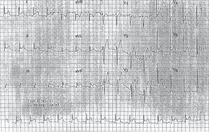 Electrocardiograma que muestra elevación difusa y cóncava del ST con depresión del PR.