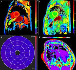 Mapa de T1 nativo miocárdico (A), mapa de T1 poscontraste (B), diagrama de volumen extracelular de 17segmentos (C) y mapa de T2 (D). A–C: personas sanas; D:animal de experimentación.
