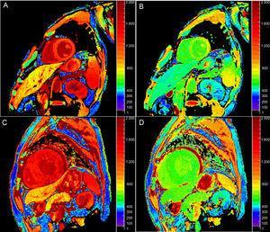 Mapas de T1 nativo (A y C) y T1 poscontraste (B y D) a 3T en pacientes sin (fila superior) y con amiloidosis cardiaca (fila inferior). Obsérvese el aumento del T1 nativo y la disminución del T1 poscontraste en la amiloidosis, que se traduce en un aumento notable del volumen extracelular (el 21 frente al 46% respectivamente).