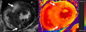 Proyección de eje corto de realce tardío de gadolinio (A) y mapa de T1 nativo correspondiente a 3T (B) en un paciente con miocardiopatía hipertrófica. Obsérvese el aumento de T1 en el tabique en comparación con la pared lateral, en especial en las áreas de captación tardía de gadolinio (flechas).
