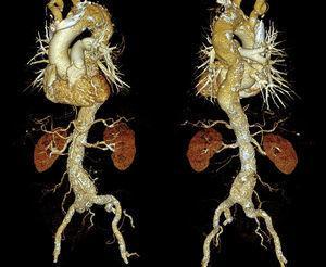 Reconstrucción aórtica tridimensional que muestra la existencia de arteriosclerosis aórtica grave y difusa asociada con la formación de aneurismas aórticos e incremento de la tortuosidad aórtica. Vista anterior (panel izquierdo) y vista posterior (panel derecho) de la aorta.