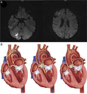 A:imágenes de resonancia magnética cerebral con ponderación de difusión tras un procedimiento de TAVI realizado con éxito en un paciente de 82años que muestran lesiones isquémicas agudas (imágenes hiperintensas) distribuidas en ambos hemisferios y dentro de territorios anteriores y posteriores, lo cual indica etiología embólica. B:origen de las fuentes de embolización después del TAVI. Los principales orígenes de émbolos asociados al TAVI son la rotura de la placa aórtica o de la válvula aórtica durante el paso del catéter y la guía, la formación de un trombo durante la intervención y la tromboembolia subaguda originada directamente en el propio complejo de válvula cardiaca nativa-válvula percutánea, la carga aterosclerótica o causada por una fibrilación auricular crónica o de nueva aparición. TAVI: implante percutáneo de válvula aórtica. Reproducido con permiso de Kahlert et al.27 y Fanning et al18.