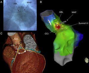 A: proyección de fluoroscopia oblicua anterior izquierda con el catéter de ablación (ABL) situado en la CCI y el catéter de mapeo (MAP) introducido hasta alcanzar la unión de la VCM y la VIA. La angiografía coronaria mostró una distancia segura entre el catéter de ablación y los vasos coronarios principales. B: proyección lateral izquierda superior del mapa de activación con el sistema CARTO 3 que muestra el summit del VI y la CCI donde se realizó la ablación (círculo rojo). C: imagen de tomografía computarizada del summit del VI (reproducido con permiso de Lin et al.5). ABL: ablación; CCD: cúspide coronaria derecha; CCI: cúspide coronaria izquierda; CXI: arteria coronaria circunfleja izquierda; DAI: arteria coronaria descendente anterior izquierda; MAP: mapeo; PS: perforante septal; VCM: vena coronaria mayor (vena cardiaca magna); VI: ventrículo izquierdo; VIA: vena interventricular anterior. Esta figura se muestra a todo color solo en la versión electrónica del artículo.
