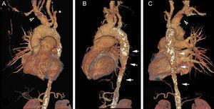 Angiotomografía computarizada con reconstrucción en proyección oblicua anterior izquierda (A), lateral izquierda (B) y posterior (C). Se aprecia oclusión de la subclavia izquierda (asterisco), dilatación del tronco innominado (punta de flecha), ausencia de arteria pulmonar izquierda y estenosis de la aorta torácica descendente con pared calcificada (flechas).