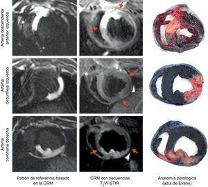 Comparación de la extensión del área en riesgo visualizada según el patrón de referencia basado en la CRM, la secuencia T2W-STIR el día7 y la tinción anatomopatológica de cada territorio coronario. CRM:cardiorresonancia magnética; T2W-STIR:T2-weighted short tau triple-inversion recovery.