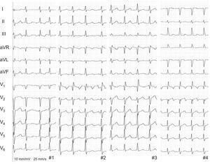 Electrocardiograma de 12 derivaciones del aleteo auricular de aspecto atípico de los cuatro pacientes.