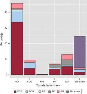 Transiciones del fenotipo de placa (eje x) entre la evaluación basal y la de seguimiento (los fenotipos de placa se indican mediante códigos de color). EIP:engrosamiento intimal patológico; FCF:fibroateroma de capa fina; FCG:fibroateroma de capa gruesa; PF:placa fibrosa; PFc:placa fibrocalcificada.