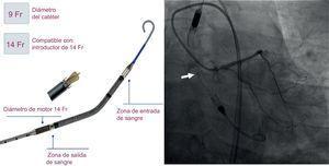 Dispositivo Impella CP (izquierda). Imagen angiográfica del Impella CP insertado en el paciente4 (derecha). El marcador radiopaco del dispositivo (flecha) debe alinearse con el plano valvular aórtico.