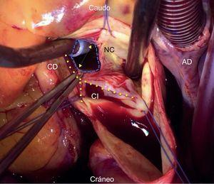 Imagen intraoperatoria de la válvula aórtica, que muestra perforación del velo no coronario. Las suturas (azules) delimitan las 3 comisuras. El aspirador de la izquierda se introduce a través de la rotura del velo. El aspirador de la derecha está sobre el anillo del velo roto que se abre en forma de V casi impidiendo ver los velos coronarios izquierdo y derecho. La pinza sostiene un borde del velo roto, que debería unirse a la otra mitad del velo, es decir a la comisura que está a las doce. AD: aurícula derecha; Caudo: caudal; CD: coronaria derecha; CI: coronaria izquierda; NC: no coronario. Esta figura se muestra a todo color solo en la versión electrónica del artículo.