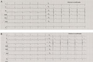 A: electrocardiograma al ingreso con patrón de Brugada tipo 1. B:electrocardiograma normalizado a las 24h.