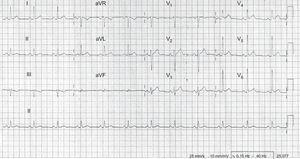 Electrocardiograma: se aprecia descenso del intervalo PR y elevación cóncava del segmento ST en derivaciones I, avL, V3-6.