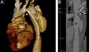 Tomografía computarizada obtenida antes de la intervención que muestra una coartación aórtica distal a la arteria subclavia izquierda (flechas blancas) y una disección de aorta (flechas negras). A:reconstrucción tridimensional mediante tomografía computarizada. B:reconstrucción de la línea central de la luz.
