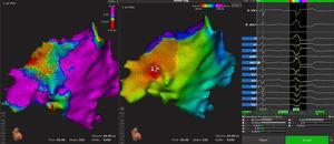 Mapas epicárdicos, de voltaje (panel izquierdo) y activación (panel medio), de la cara inferior del ventrículo izquierdo desde una vista anterosuperior izquierda. Se observa zona de bajo voltaje y activación más precoz a nivel inferior del ventrículo izquierdo (estrella del panel medio), que corresponde al origen de las taquicardias ventriculares. En el panel derecho se puede observar cómo el algoritmo automático acepta correctamente una extrasístole clínica. Esta figura se muestra a todo color solo en la versión electrónica del artículo.