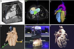 Secuencia de impresión tridimensional (3D). A:imagen radiológica 3D. B:segmentación de tejidos cardiacos. C:volumen 3D de anatomía cardiaca segmentada. D:diseño asistido por ordenador. E:impresión mediante modelado por deposición fundida. F:modelo 3D final.