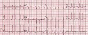 Electrocardiograma al ingreso, típico de paroxística recíproca de la unión.