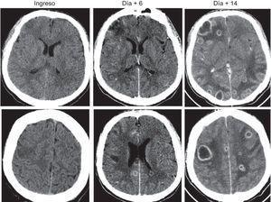 Tomografía computarizada craneal con contraste: áreas de cerebritis que evolucionan a la formación de abscesos cerebrales múltiples.