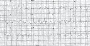 Electrocardiograma de presentación de un paciente con un equivalente de infarto agudo de miocardio con elevación del segmento ST; la arteria culpable era la circunfleja izquierda y se trató con una intervención coronaria percutánea primaria. Las reglas de Smith son negativas.