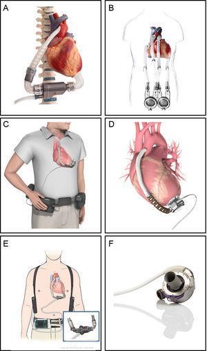 Dispositivos de asistencia ventricular de larga duración. A:el INCOR (Berlin Heart; Berlín, Alemania) es una bomba axial de flujo continuo intracorpórea que dispone de un propulsor levitado magnéticamente. B:el EXCOR (Berlin Heart, Berlín, Alemania) es una bomba de flujo pulsátil paracorpórea con 1 o 2 ventrículos. C y D:el HVAD (HeartWare; Framingham, Massachusetts, Estados Unidos) es una bomba centrífuga de flujo continuo intracorpórea. E:el HeartMate II (St.Jude Medical, Pleasanton, California, Estados Unidos) es una bomba de flujo continuo intracorpórea. F:el HeartMate3 (St.Jude Medical; Pleasanton, California, Estados Unidos) es una bomba centrífuga de flujo continuo intracorpórea con levitación magnética. Reproducida con permiso de Berlin Heart, St.Jude Medical y HeartWare.