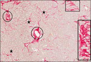 Tejido endomiocárdico procedente del paciente1, que sufría EA grave con FEc y síntomas de IC. Los cortes se tiñeron con rojo picrosirio y las fibras de colágeno se identifican por el color rojo. Mientras que el colágeno misial se identifica como bandas delgadas alrededor de los miocardiocitos o grupos de miocardiocitos (estrellas), el colágeno no misial se identifica como franjas grandes de localización difusa en todo el intersticio (rectángulos) y alrededor de los vasos intramiocárdicos (óvalos). Aumentos, ×40. EA: estenosis de la válvula aórtica; FEc:fracción de eyección conservada; IC: insuficiencia cardiaca. Esta figura se muestra a todo color solo en la versión electrónica del artículo.